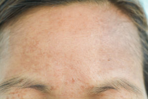 Sun damaged skin on forehead